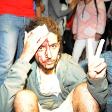 A protester injured during a demonstration on August 2, 2013 in Rabat-Morocco on the release of a Spanish paedophile, Daniel Fino Galvan who raped 11 local children was pardoned by the Moroccan King Mohammed VI. AFP PHOTO / FADEL SENNA