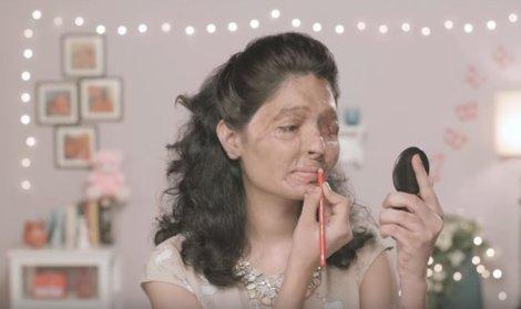 Reshma lipstick acid attacks