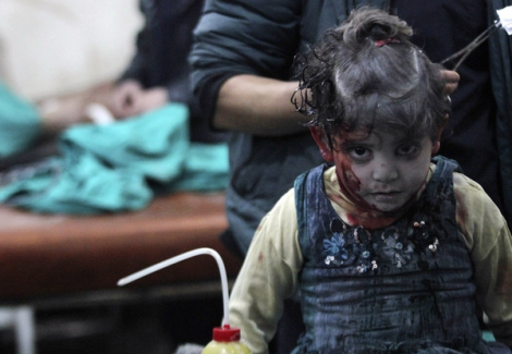 Injured girl waits for treatment after rptd airstrike by forces loyal to #Syria's Assad; Damascus (Reuters)