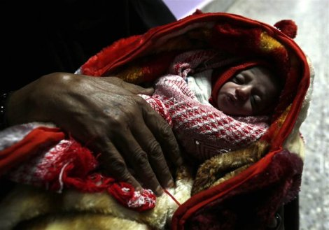 A woman carries her baby at therapeutic feeding centre in a hospital in Sana'a, #Yemen (Yahya Arhab/EPA)